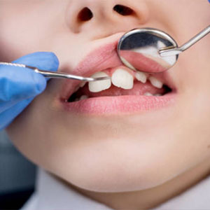 Tooth crowns, or tooth caps, are available should your child need them.